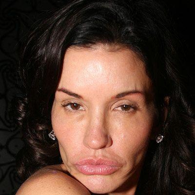 Daha dolgun dudaklara sahip olmak isteyen Janice Dickinson işte bu hale geldi.